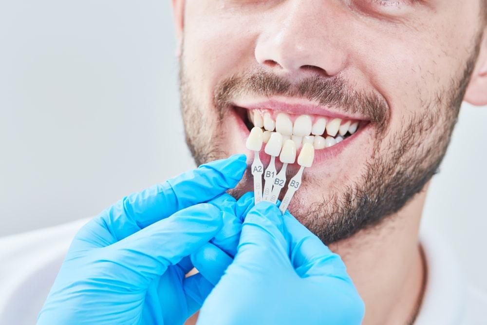 Odbudowa protetyczna zęba – jakie są możliwości?